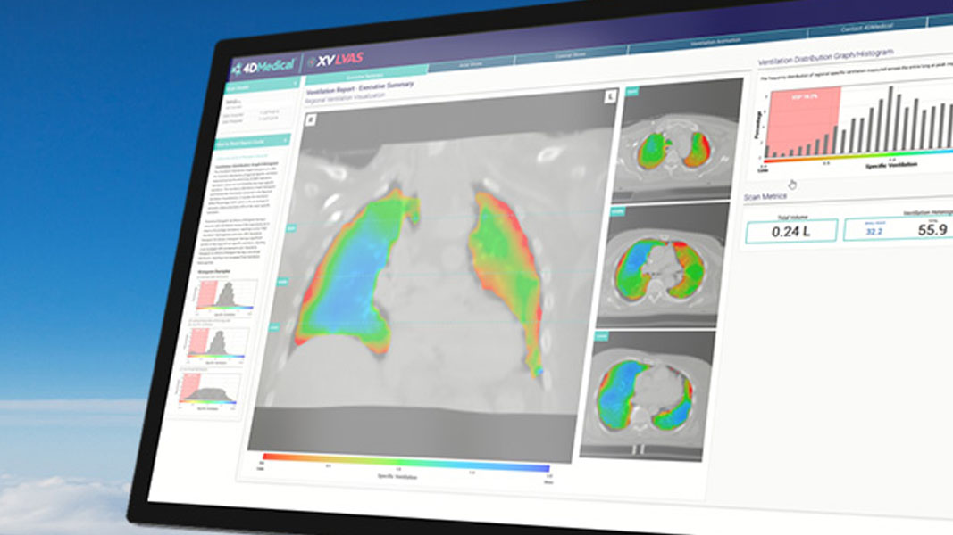 4D Medical progresses with development of their dedicated lung diagnostics tech