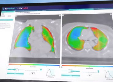 4DMedical's clinical pilot program to progress following successful first phase