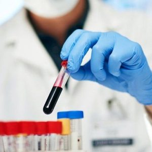 Rhythm Biosciences' colorectal cancer test outperforms the current gold standard, to hit market in 2022